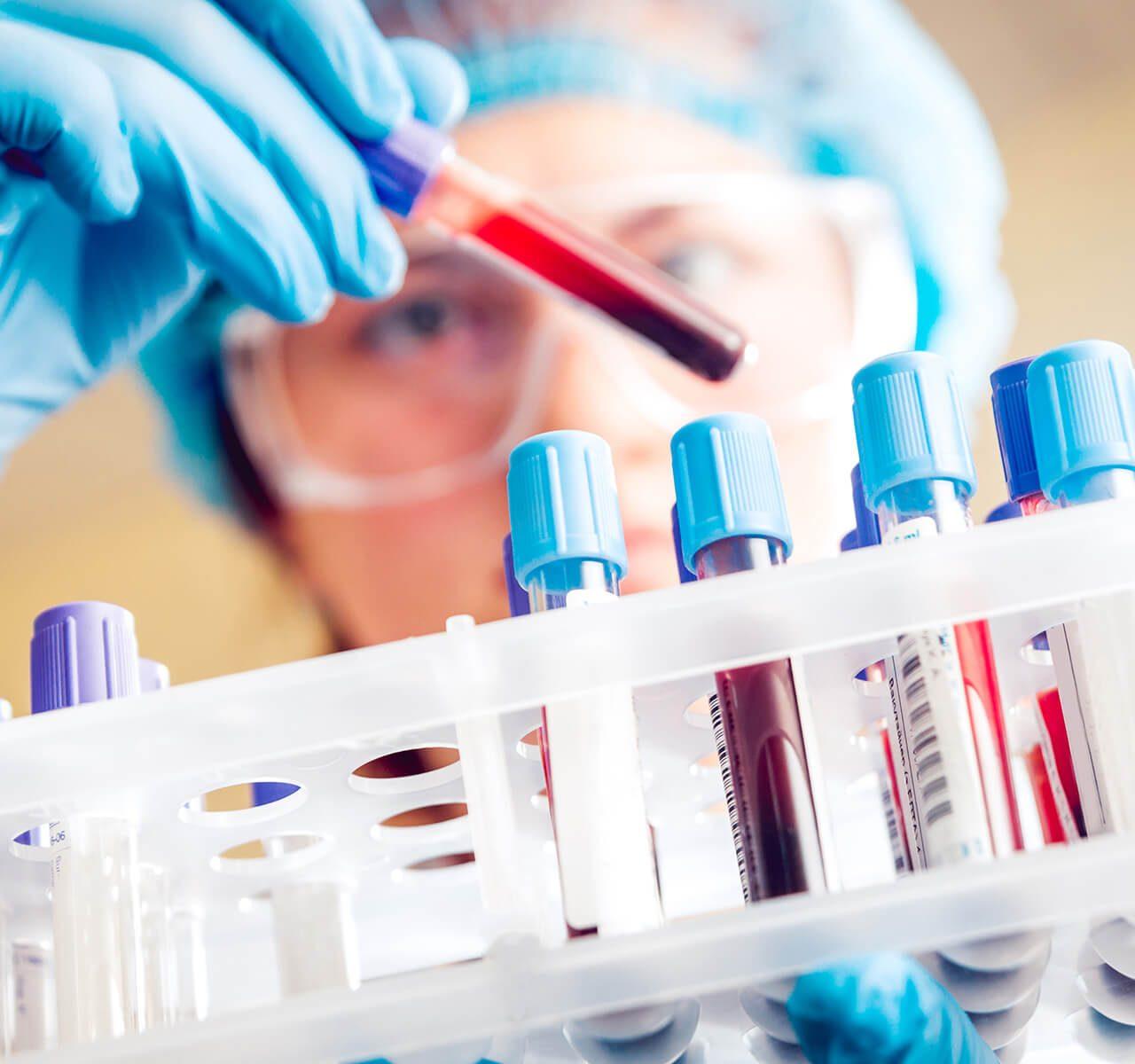Improved Detection of Acute Lyme Disease